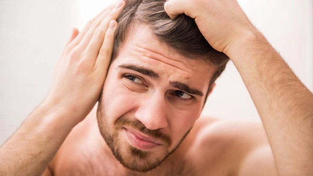 Things To Know Before Starting Your Own Hair Loss