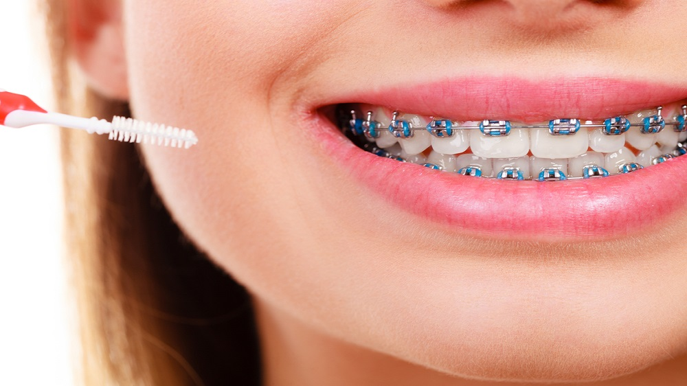 The Changing Trend and Market Potential of Dental Braces in India