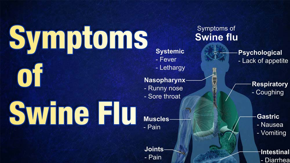 UP government to soon open 3 new swine flu testing labs