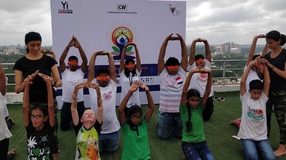 """Sankara Eye Hospital Bangalore conducts """"Blindfold Yoga"""" session"""
